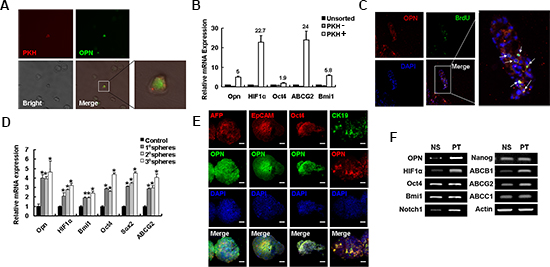 OPN is highly expressed in self-renewal cells.