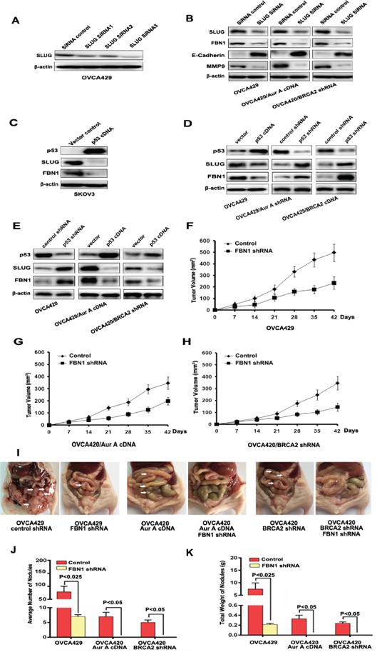 Upregulation of FBN1 by SLUG and effects of FBN1 on tumorigenesis.
