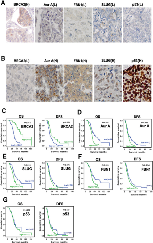 Immunohistochemical analyses of Aur A, BRCA2, FBN1 and SLUG expression and correlation in high-grade ovarian serous carcinoma and the associations of the molecules with patient survivals.