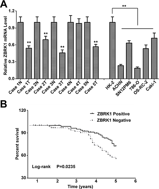 Loss of ZBRK1 expression is associated with poor prognosis in patients with renal cancer and contributed to the renal cancer progression.