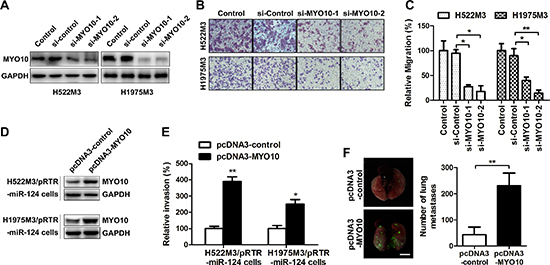Re-expression of MYO10 rescues miR-124-mediated suppression of cell aggressiveness.