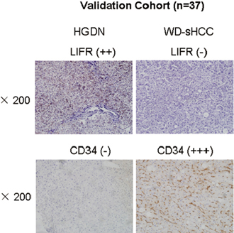 Expression of LIFR and CD34 in validation cohort.
