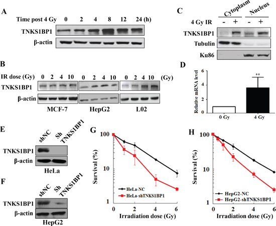 Upregulation of TNKS1BP1 by ionizing radiation (IR) and its effect on the radiosensitivity of cells.