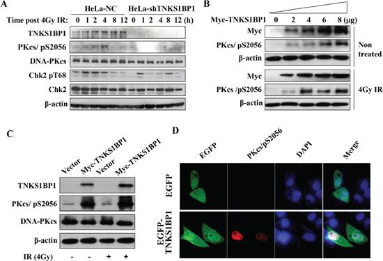 TNKS1BP1-medated autophosphorylation of DNA-PKcs/S2056.