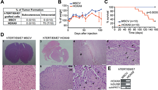 HOXA9 induces glioma initiation and tumor-associated death in intracranial orthotopic xenografts.
