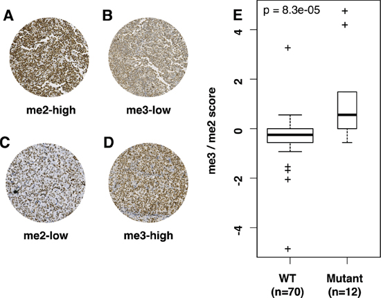 Differential IHC H3K27me2/me3 expression can distinguish WT and mutant EZH2 DLBCL.