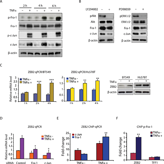 TNFα induces AP-1 activation and ZEB2 expression in TNBC cells.
