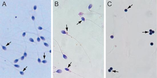 Isolation of normal sperm, abnormal sperm, and globozoospermia sperm.