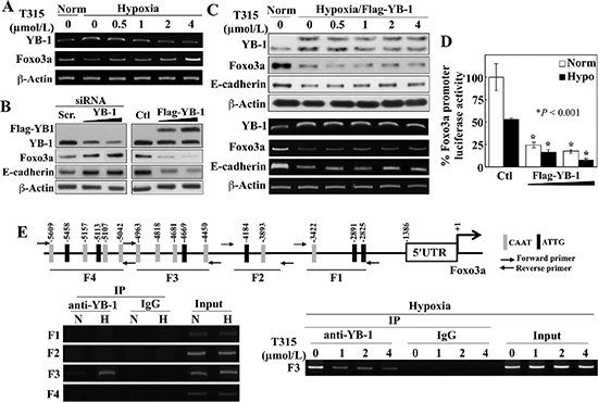 ILK inhibition by T315 reactivates Foxo3a gene expression under hypoxia by abolishing YB-1-mediated transcriptional repression in PC-3 cells.