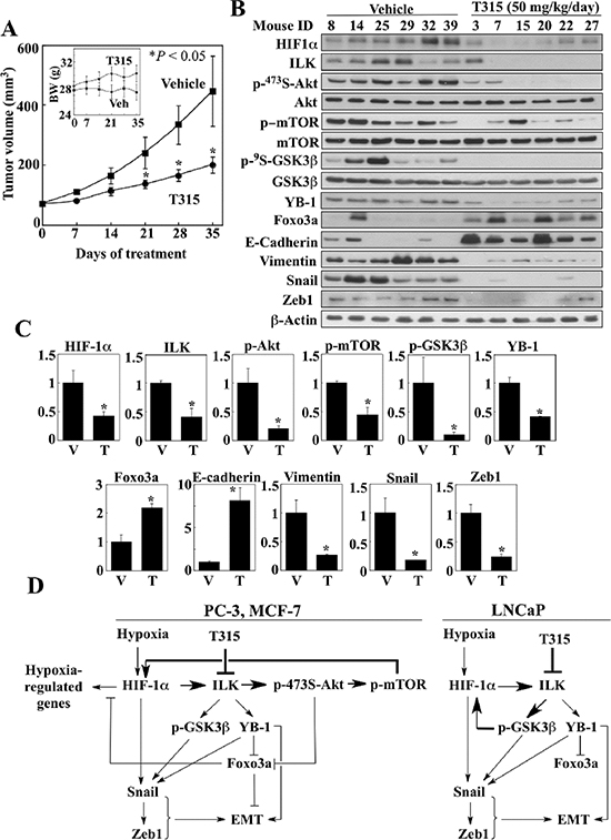 Effect of ILK inhibition by treatment with T315 on PC-3 xenograft tumors.