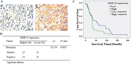 Higher MMP-13 expression (MMP-13high) was associated with metastasis and poorer survival of melanoma patients.