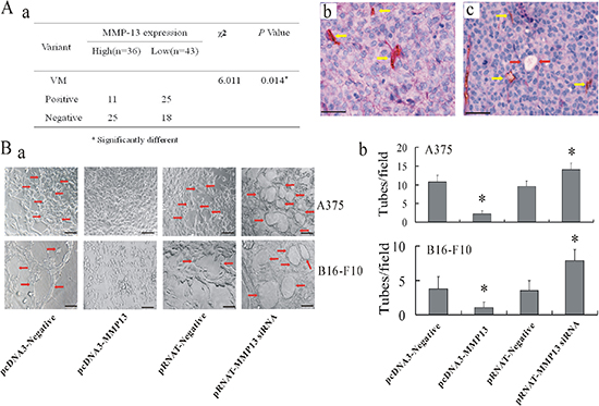 MMP-13 inhibited formation of VM both in vivo and in vitro.