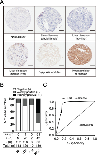 Tissue microarray analysis validates the sensitivity and specificity of GLS1 for diagnosis of HCC.