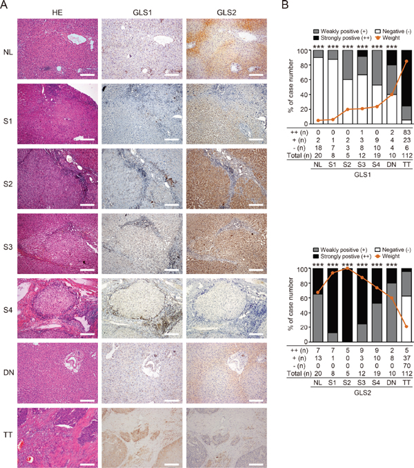 Glutamine metabolism is switched from GLS2 to GLS1 during oncogenic transformation to HCC.