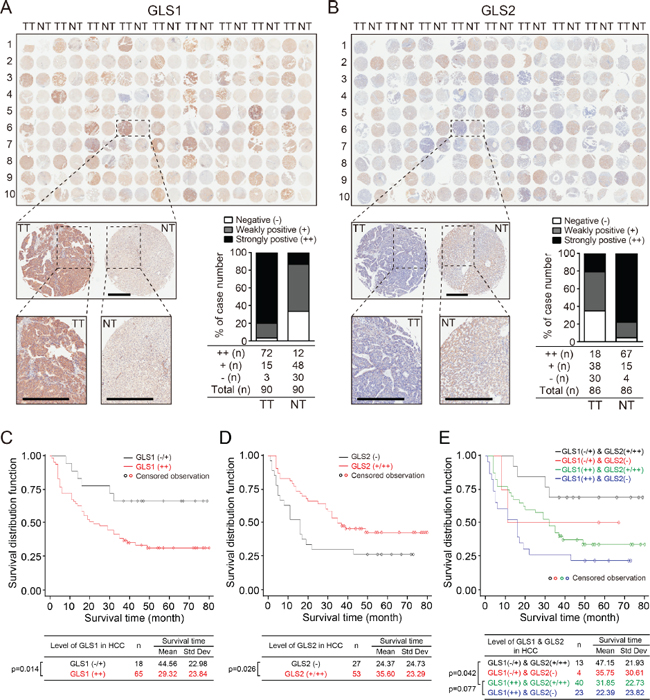 Expression of GLS1and GLS2 correlate with survival times of HCC patients.