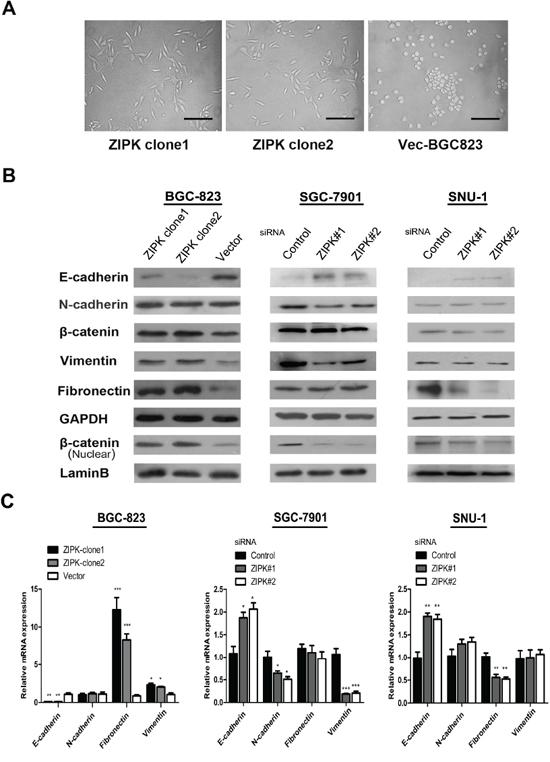 ZIPK induces epithelial-mesenchymal transition.