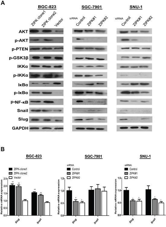 ZIPK activates AKT/IκBα/NF-κB pathway to induce EMT.