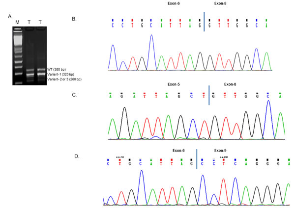 RT-PCR amplification and sequence analysis of Rad51C variants.