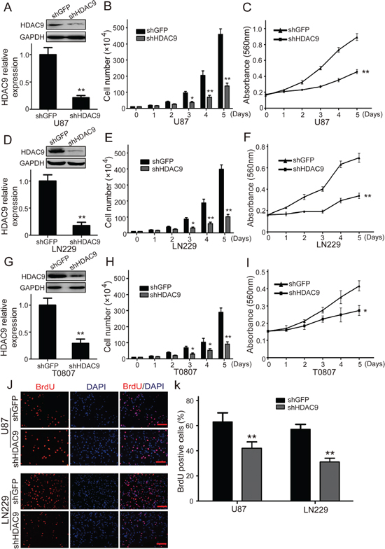 Knockdown of HDAC9 inhibits GBM cell growth and proliferation.