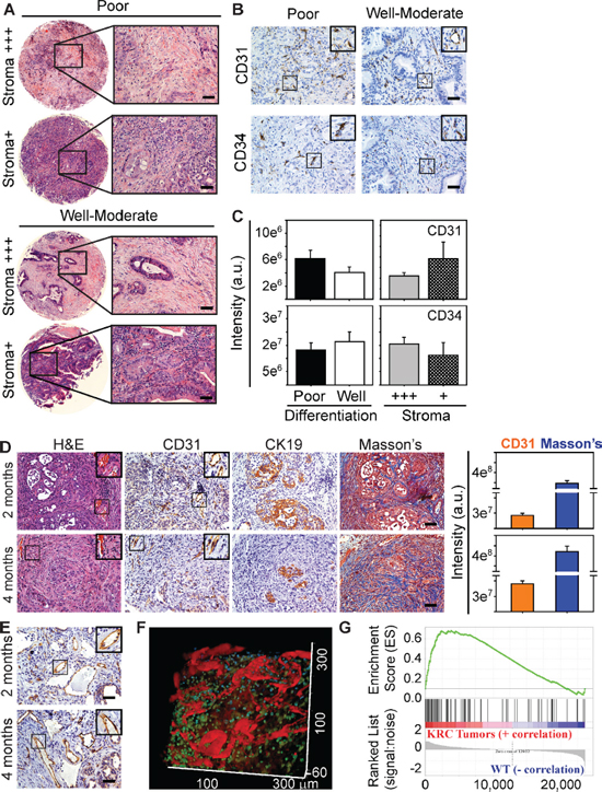Subsets of Human PDACs and KRC murine PDACs exhibit angiogenesis.