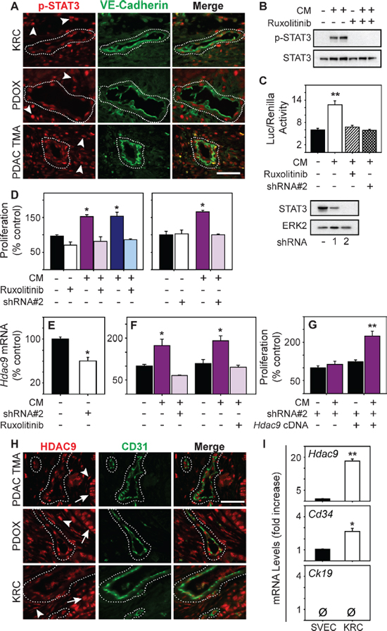 STAT3 is active in PDAC tumor endothelia and enhances HDAC9 expression to promote endothelial proliferation.