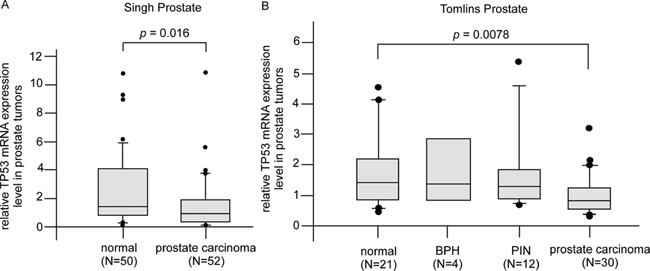 Gene expression of Tp53 in PCa patient oncomine database.
