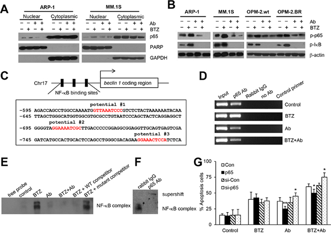 Anti-β2M mAbs and BTZ combination treatment down-regulates BTZ-induced NF-κB p65 activity.