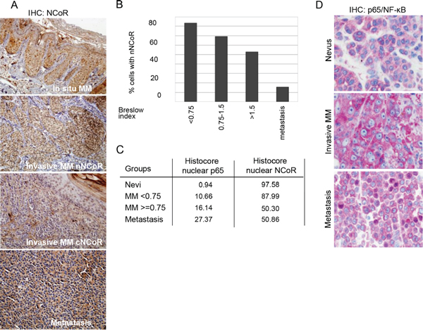Loss of nuclear NCoR is associated with MM progression.