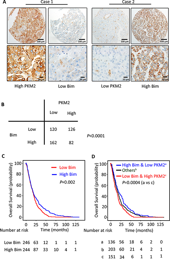 PKM2 expression is reversely correlated with Bim expression in clinical samples.