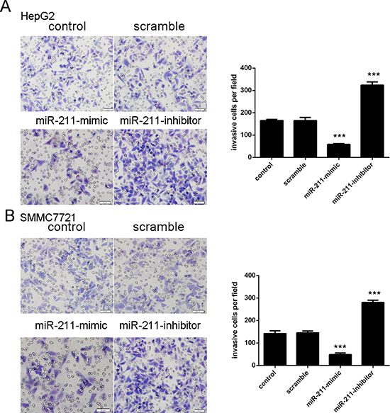 Upregulation of miR-211 inhibits cell invasion.