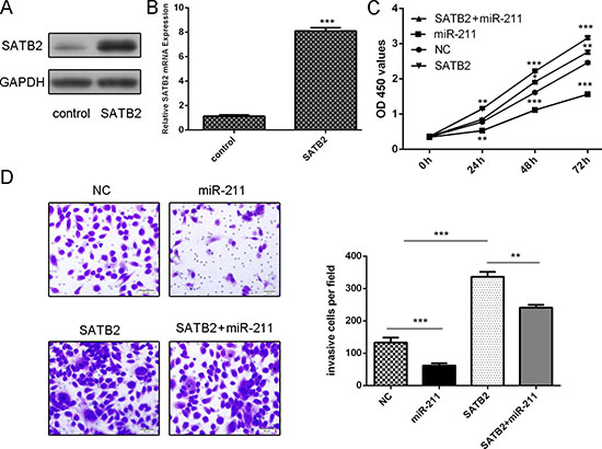 miR-211 regulated cell proliferation and invasion through inhibiting SATB2.
