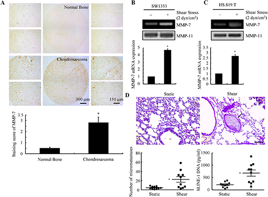Fluid shear stress activates MMP-7 in human chondrosarcoma cells and promotes their lung colonization in vivo.