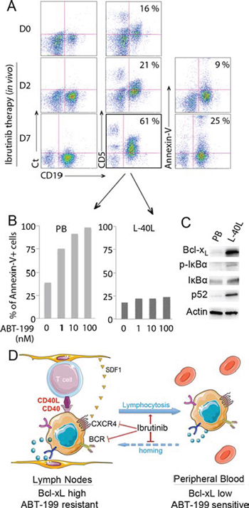 Sensitivity of mobilized primary MCL cells to ABT-199 in a patient treated with ibrutinib.