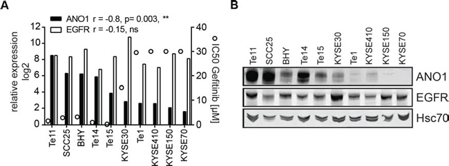 Expression of ANO1 predicts susceptibility to Gefitinib in HNSCC cell lines.