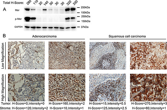 Overexpression of Mer RTK in NSCLC of freshly harvested cancer tissues.