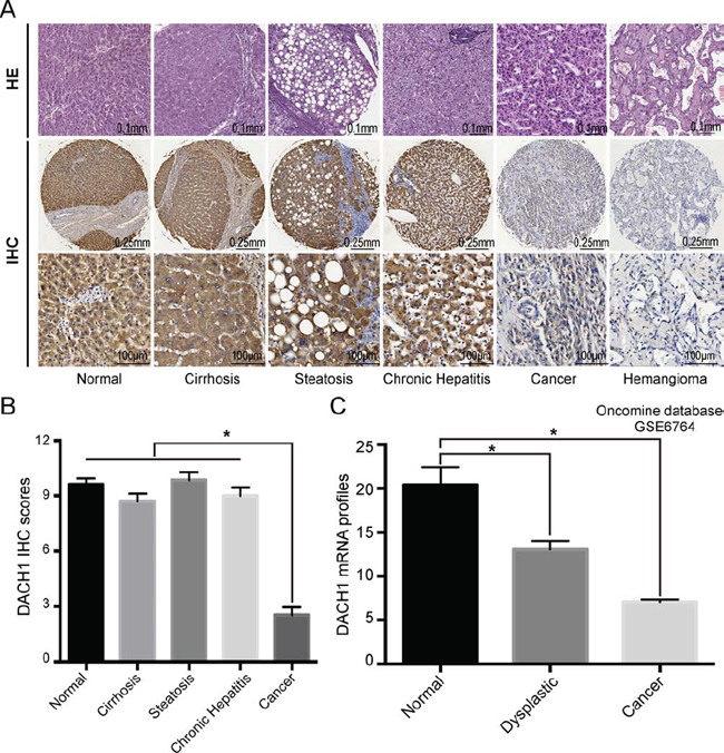 Combined analyses of DACH1 in liver benign and malignant lesions.