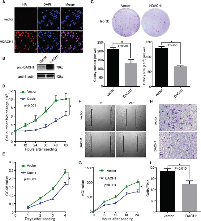 Overexpression of DACH1 suppresses cell growth and migration of HCC cell line in vitro.