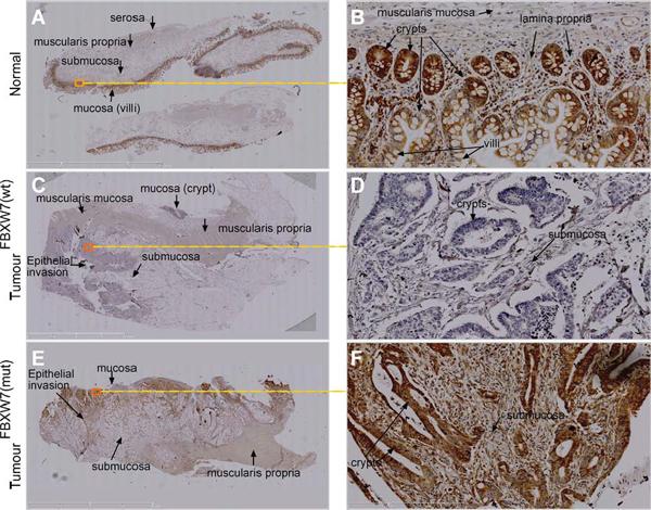 IHC validation of phospho-p53(Ser15) accumulation in FBXW7-mutant human CRC-tissues.