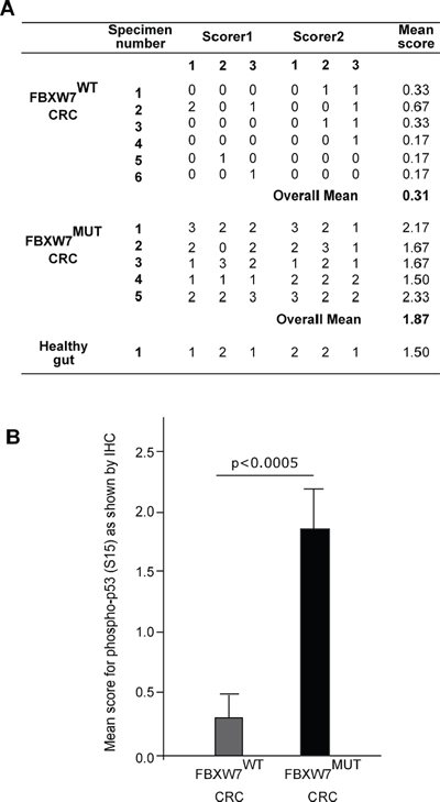 Phospho-p53(Ser15) expression scores in sections from CRC-tissues with and without FBXW7-mutations.
