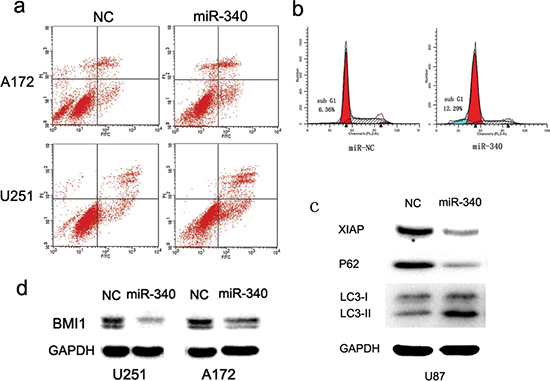 MiR-340 promotes glioma apoptosis and autophagy.