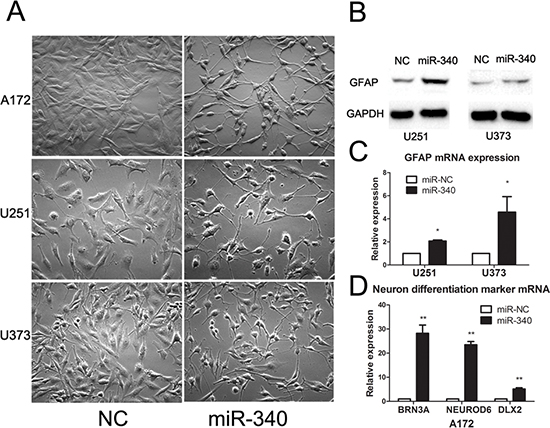 MiR-340 induces glioma morphology changes and upregulates the mature differentiation markers.