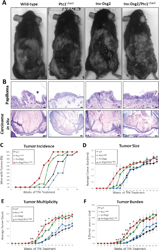 DMBA-TPA treatment results in accelerated growth of squamous derived neoplasia in Inv-Dsg2/Ptc1+/LacZ mice.
