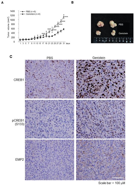 Genistein inhibited tumor growth in a NOD/SCID xenograft model.