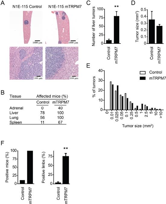 TRPM7 promotes metastatic spread to liver and bone marrow.