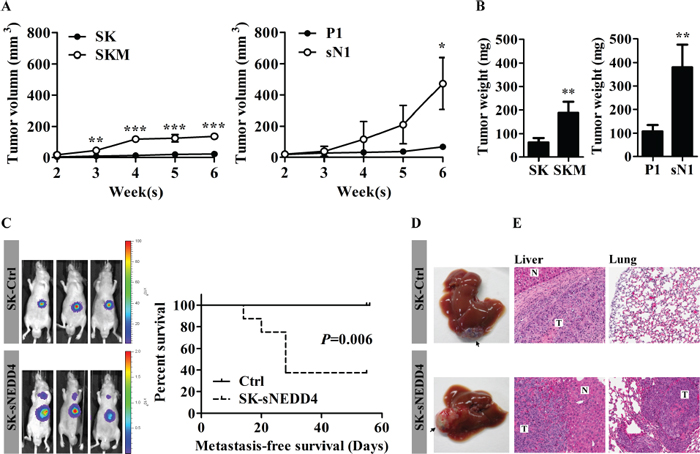 sNEDD4 promotes tumorigenesis and metastasis in vivo.
