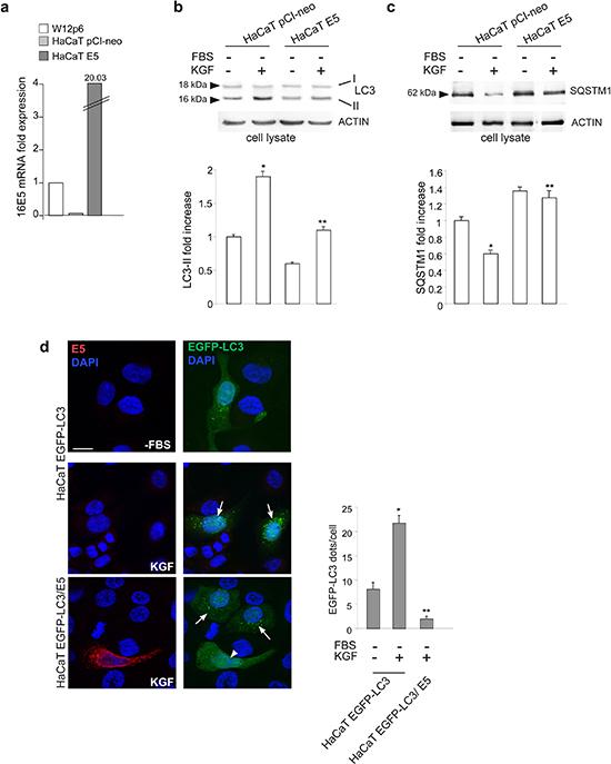 16E5 inhibits KGF-induced autophagy.