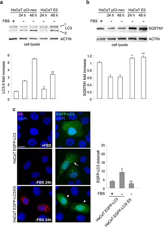 16E5 inhibits also the serum starvation-induced autophagy.