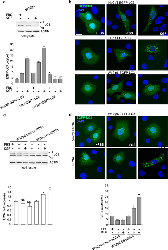 The unresponsiveness of W12p6 cells to autophagic stimuli depends on 16E5 expresssion.