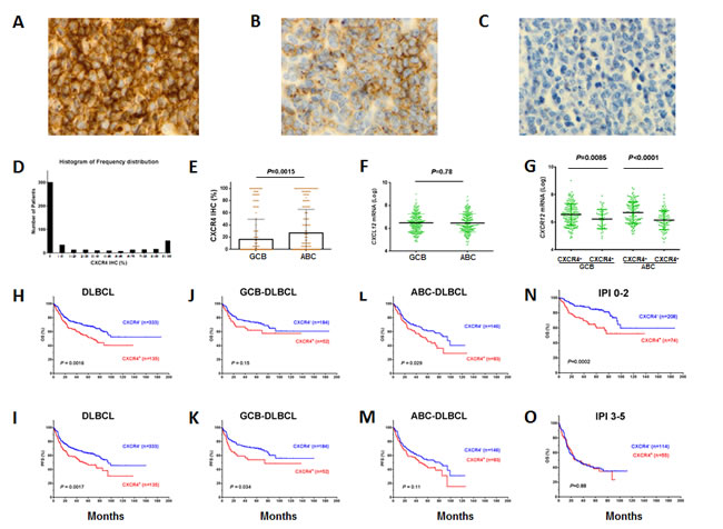 Expression and prognostic significance of CXCR4 in DLBCL.