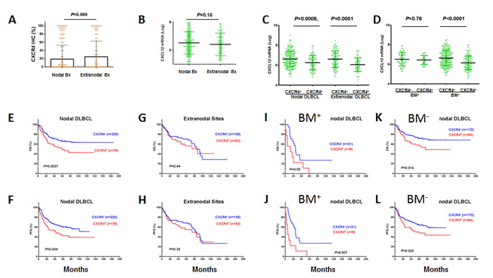 Expression and prognostic significance of CXCR4 in nodal and extranodal DLBCL.